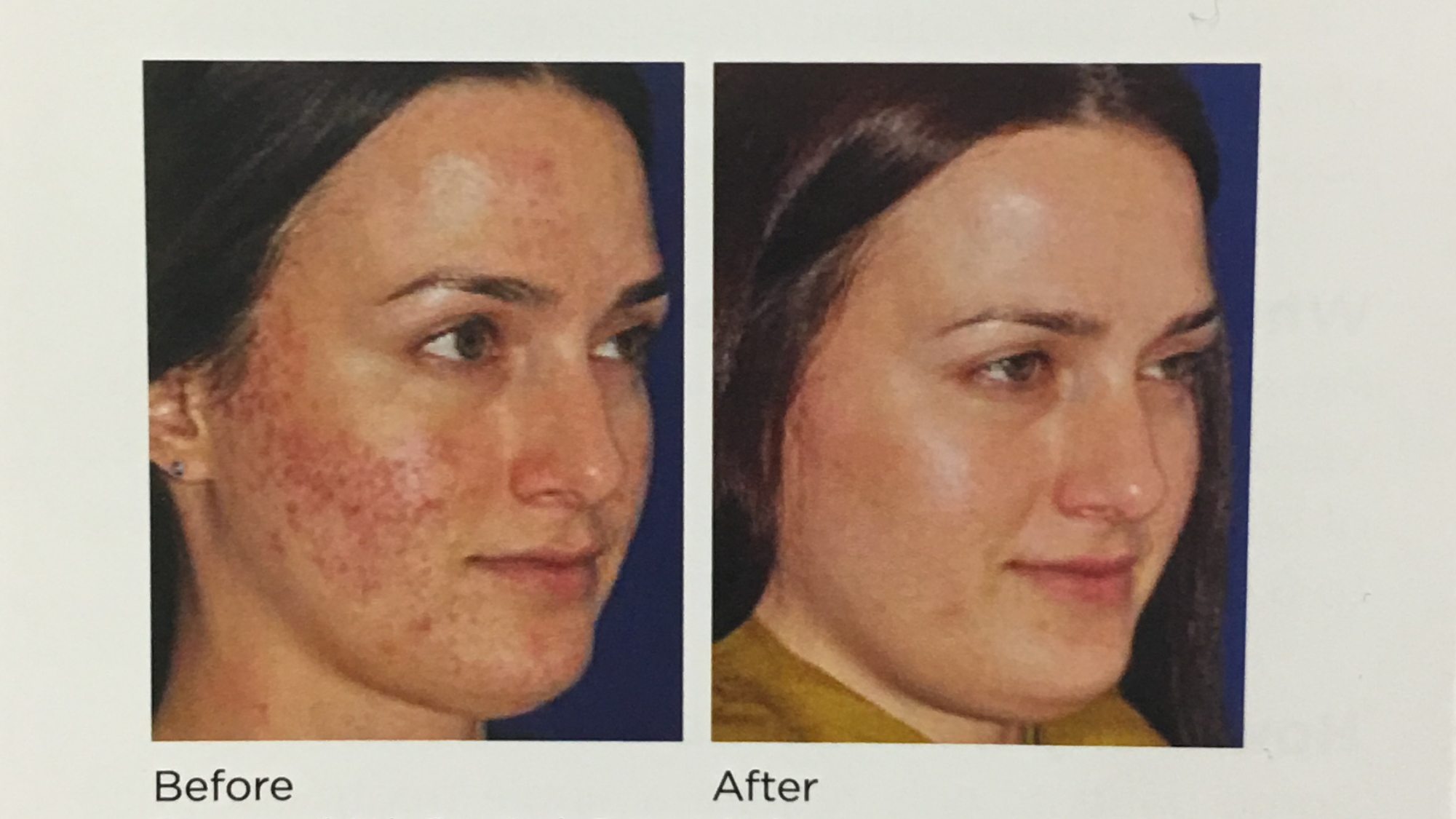 THE MIRACLE OF MICRONEEDLING